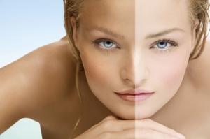 ¿Cómo blanquear la piel?